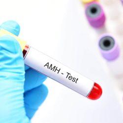 A termékenység mutató - Anti Müller hormon (AMH)